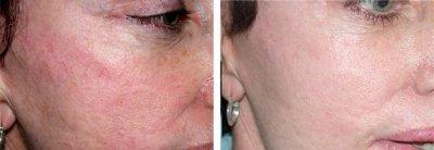 Aft-омоложение кожи: комфортная процедура и превосходный результат уже через несколько сеансов.