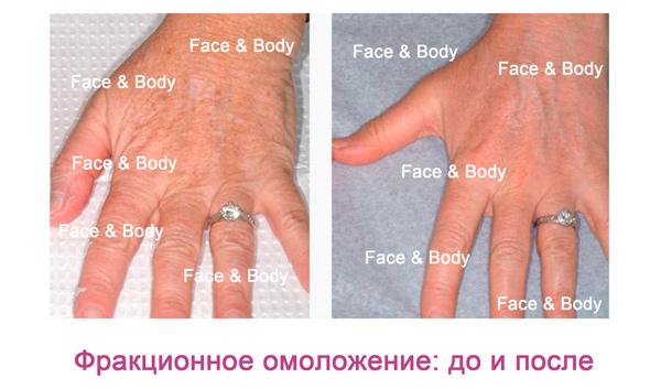 Фракционное лазерное омоложение кожи — клиника медицинской косметологии face & body