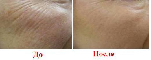 лазерное омоложение - косметология «доктор лазер»