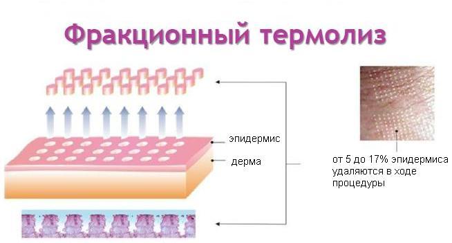лазерное омоложение кожи спб