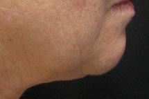 лазерное омоложение в калининграде. омоложение лица, груди