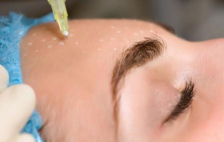 Омоложение лица без операции: лазерное, радиоволновой лифтинг, термолифтинг, плазмолифтинг, введение филера, ботокс, мезотерапия