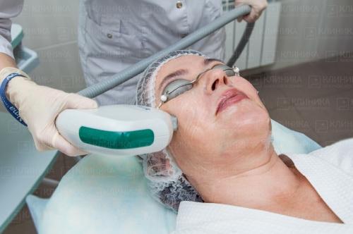 Омоложение лица без пластических операций в казани. фотоомоложение кожи по aft-технологии от клиники лазерной эстетики