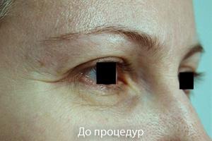 Подтяжка лица, лазерная шлифовка лица, лазерная шлифовка рубцов, подтяжка лица. лечение постакне — самара