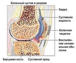 Народная медицина и лечение болезней - лечение суставов