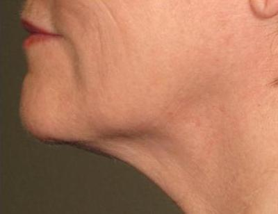 Безоперационная подтяжка. ультразвуковой лифтинг лица без операции на аппарате ulthera system
