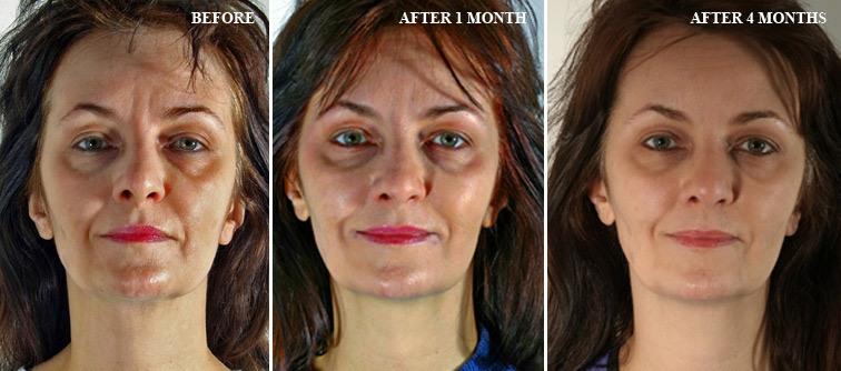 Безоперационное омоложение лица - аппаратная косметология