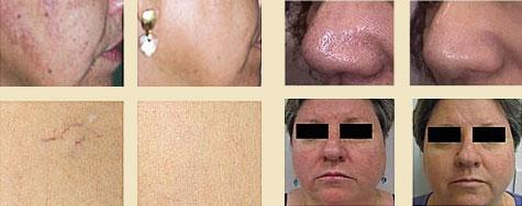 Фотоомоложение лица, безоперационная подтяжка кожи лица, rf и ir омоложение. фото до и после фотоомоложения и подтяжки кожи. салон «spa by algotherm»