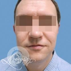 Клиника лантан : субдермальная микрохирургия : upifl-лифтинг