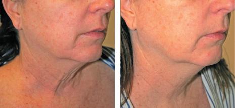Омоложение кожи и термолифтинг - элос ксметология