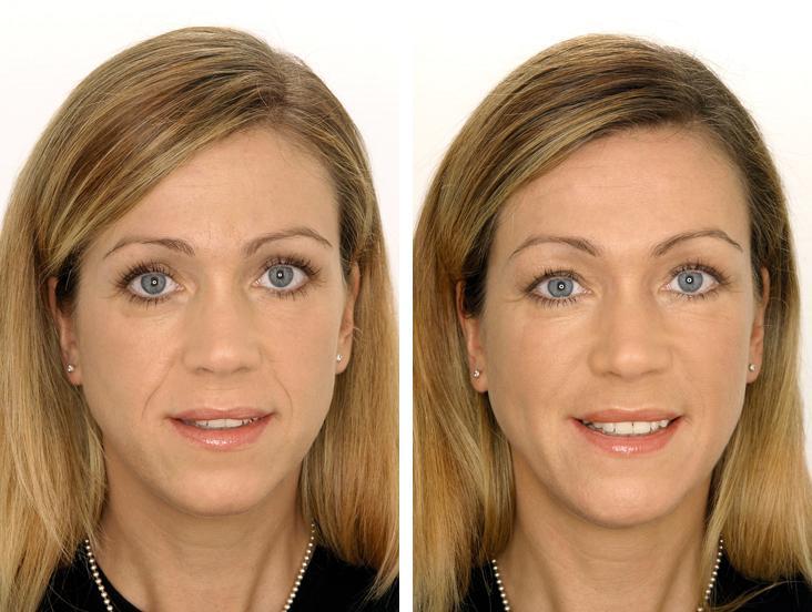 лазерное фракционное омоложение лица на аппарате fraxel