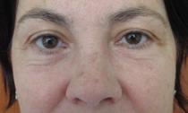Омоложение взгляда. пластическая хирургия. пластика носа. увеличение грудей. procosmetic