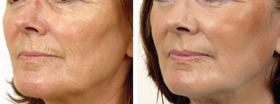 лазерное омоложение лица: отзывы, фото до и после, обзор цен, минусы